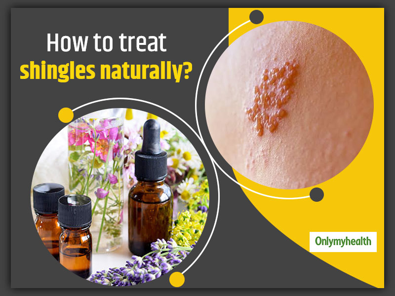 6 Useful Home Remedies For Shingles Treatment