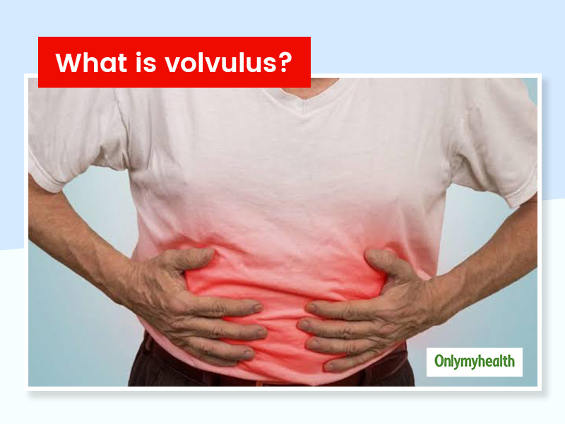 What Is A Volvulus? Know The Types, Symptoms, Causes, Diagnosis And Treatment