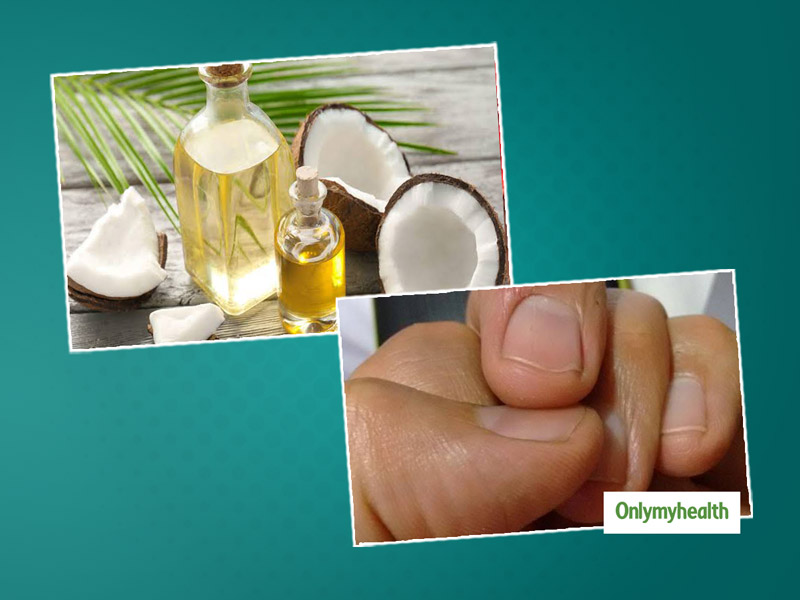 Fingertip Peeling? Here Are The Causes And Useful Home Remedies For This Occurrence