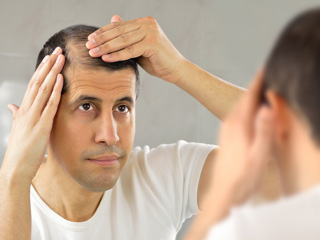 What Types Of Hair Loss Pattern Can Be Signs Of Baldness? Know Causes And Prevention Techniques