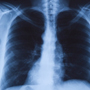 How to <strong>Prevent</strong> Pneumonia?