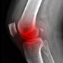 Tips for <strong>Bone</strong> <strong>Cancer</strong> Pain Management