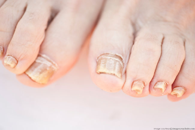 What's causing fungus to breed in my toenails?