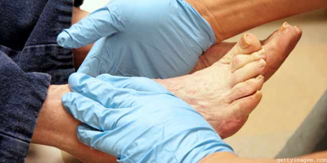 What is the Treatment of Diabetic foot?