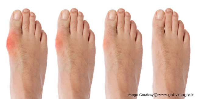 What is a Diabetic Foot?