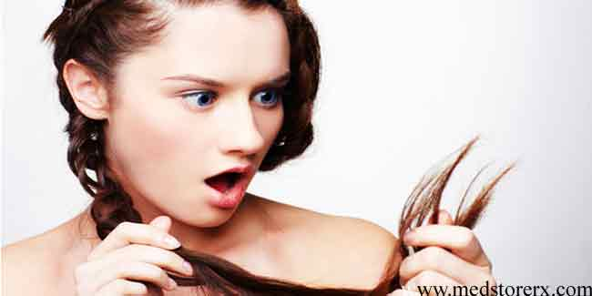 All the Reasons for Hair Loss in Women