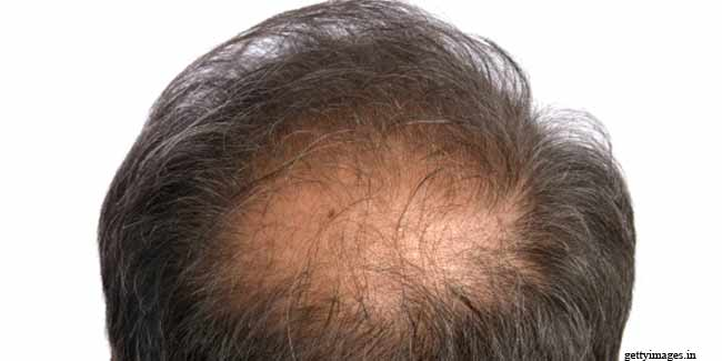 How do Hair Transplants Work