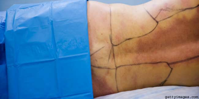 Liposuction/tummy Tuck Combo gives Better Results