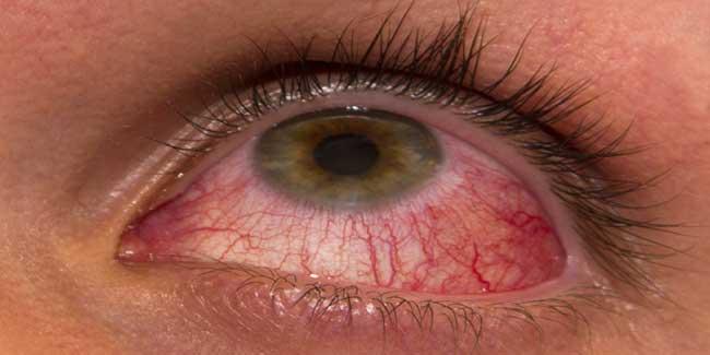 Image result for आंखों के विकारों