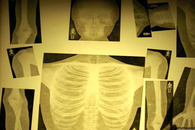 Regresses Inflammation of Tuberculosis