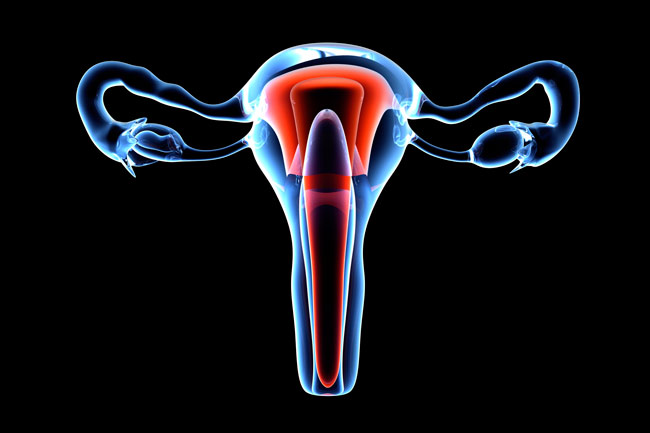 Few Women Complain of Uterine Fibroids