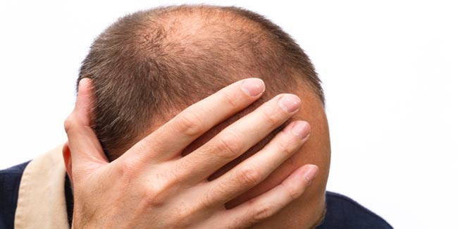 Vampire Treatment: A Solution for Baldness