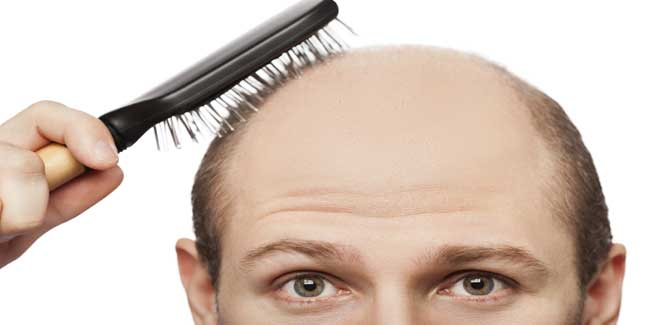 How to Stop Frontal Hair Loss in Men