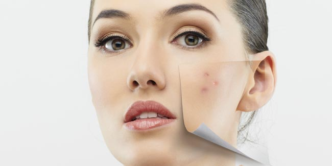 Banish the Appearence of Acne with Safe Make-up Tricks