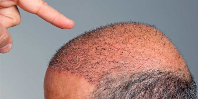 All that you Need to Know about the Age Limit for Hair Transplant