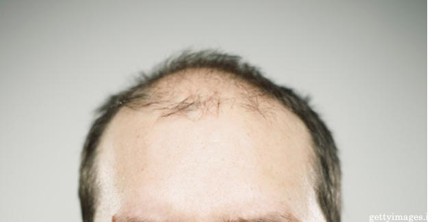 Men who Bald Early are at Risk of Incurable Lou Gehrig's Disease