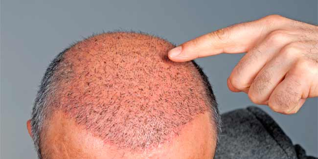 Tips to Reduce Swelling After Hair Transplant