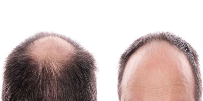 Know Everything about the Procedure of Hair Transplant