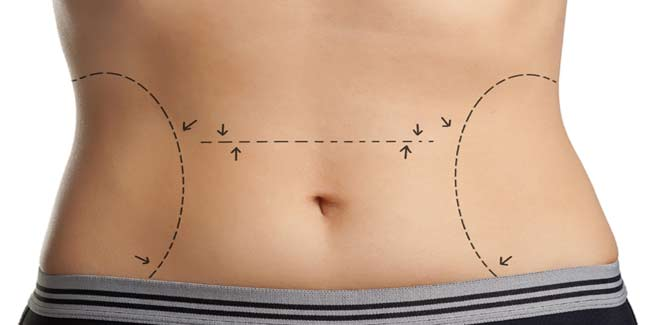 Body Contouring Surgery Explained