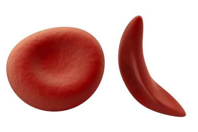 Low Red Blood Cell Count
