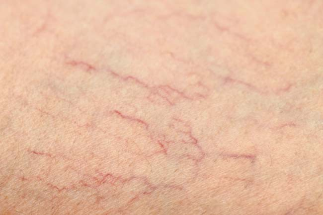 Treats Spider Veins