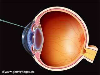 Risk Factors for Glaucoma Patients