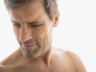 What is Gynecomastia