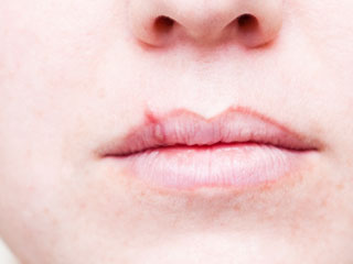 How are Cold Sores or Fever Blisters Diagnosed?