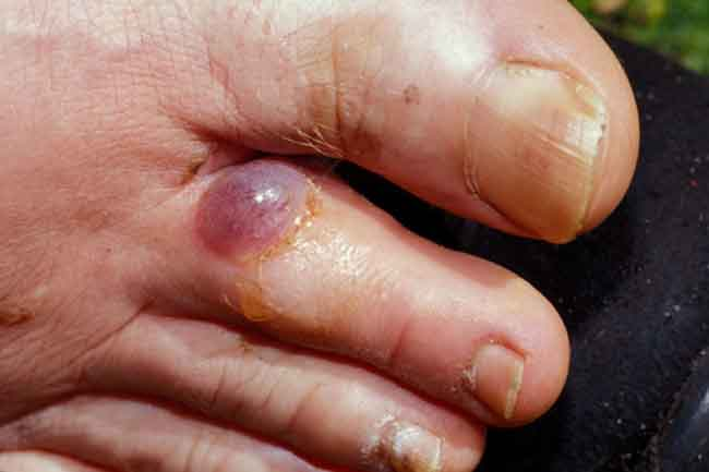 What are Blisters?