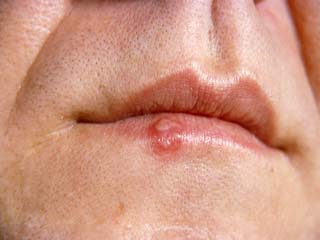 Cold Sores and Fever <strong>Blisters</strong>: When should one seek medical advice?