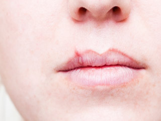 What are the causes of Cold Sores and Fever Blisters?