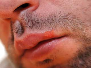What is the Expected Duration of Cold Sores and Fever Blisters