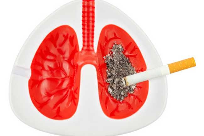 Lung Cancer Alert!