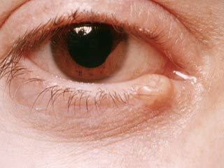 What is the prognosis of Intraocular Melanoma?