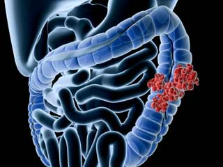 What are the Risks Associated with Small Intestine <strong>Cancer</strong>