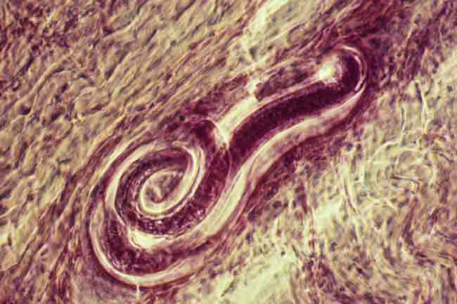 Ectoparasitic Infections