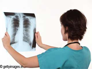 Precautions to Avoid Tuberculosis Infection