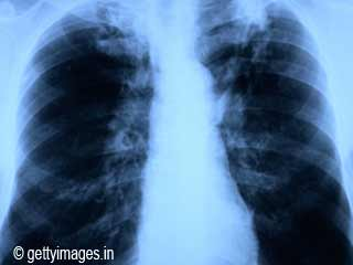 Risk of Contracting Tuberculosis
