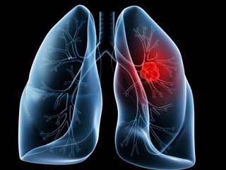 What are <strong>Lung</strong> Diseases and How are They Caused