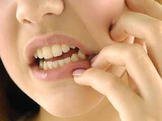 How can one <strong>prevent</strong> Burning Mouth Syndrome?