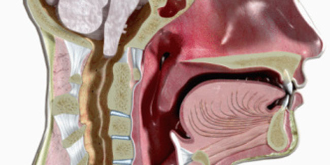 What is Vocal Cord Paralysis and what Causes it