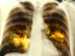 Researchers Develop a Device that can Sniff out Lung Cancer