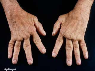<strong>Symptoms</strong> Of Rheumatoid Arthritis
