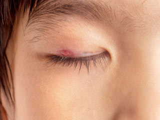 5 Home <strong>Remedies</strong> for an <strong>Eye</strong> Stye