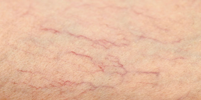 What are treatment options for varicose veins?