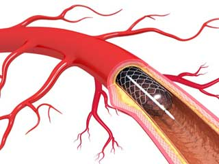 What to expect before a Stent?