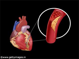 Learn about Artery Blockage
