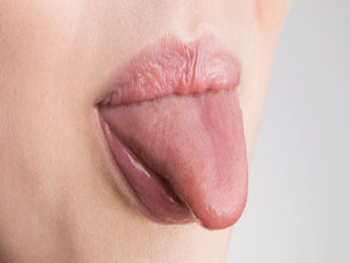 What is the expected duration of Scrotal Tongue?