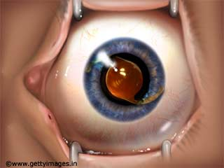 Methods for Treating Cataract