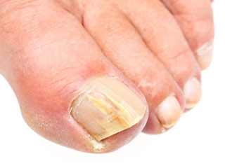 8 Risk Factors for Toenail Fungal Infection